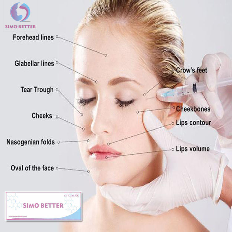 Face Beauty Hyaluronic Acid Nose Filler Sodium Hyaluronic Acid Injection