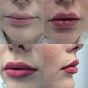 Prefilled Syringe Lip Augmentation Filler Fast Recovery Significant Effect