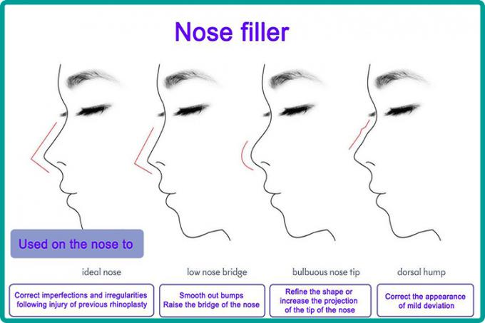 Nose Tip Correction Hyaluronic Acid Injection Safety Medical Clinic Level