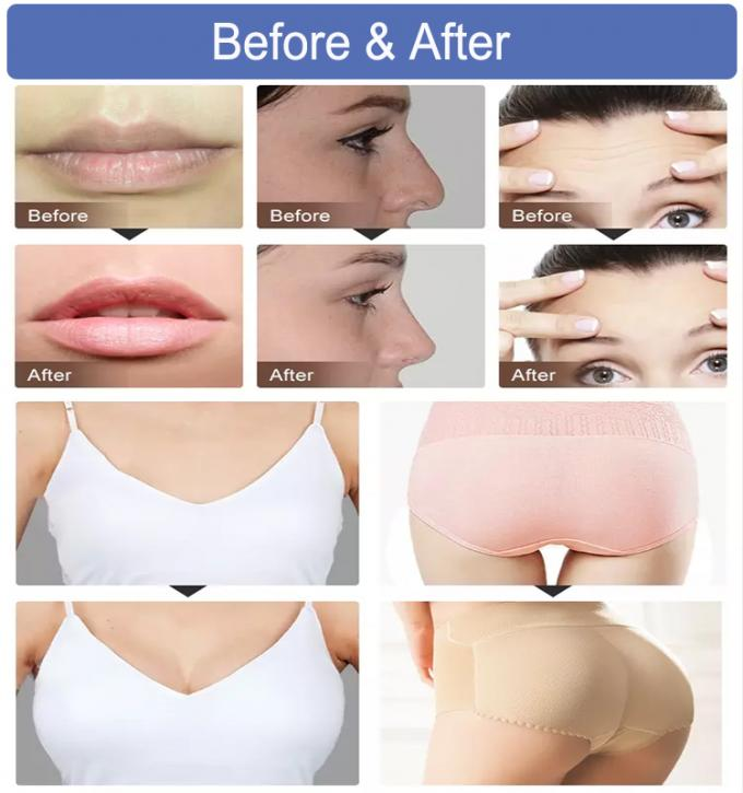 Cosmetic Grade Injectable Hyaluronic Acid Dermal Fillers For Lip
